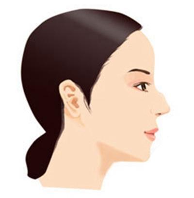 假体隆鼻多少钱