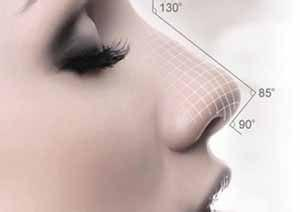 做线雕鼻子几天能消肿