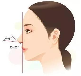 自体肋软骨隆鼻的缺点