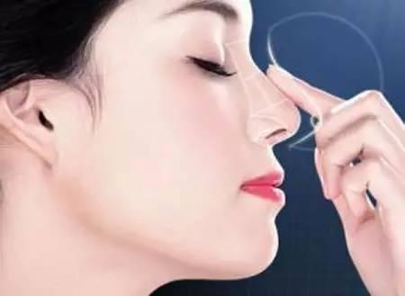 隆鼻是用硅胶好还是膨体好