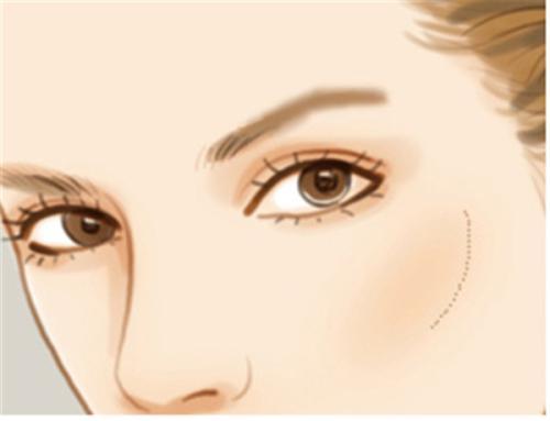 激光祛斑对皮肤好吗