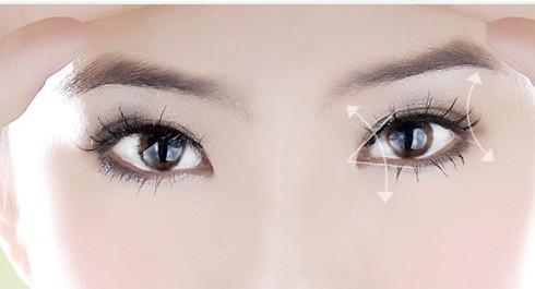 美莱双眼皮手术有几种