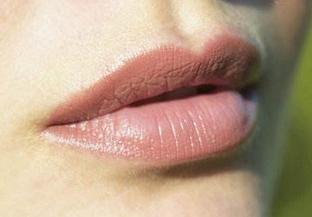 美莱自体脂肪丰唇能保持多久