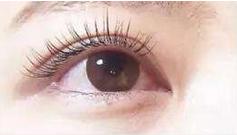 美莱双眼皮怎样能快速消肿