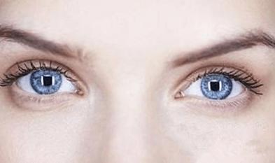 割双眼皮手术价格