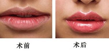 嘴唇整形一般多少钱