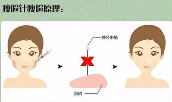 瘦脸针和溶脂针区别