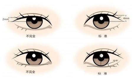 美莱埋线双眼皮有几种