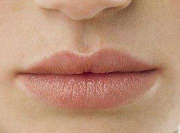 如何去除嘴唇黑色素