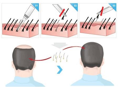 美莱种植头发能保持几年