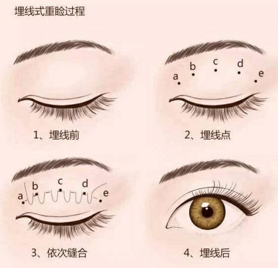 双眼皮埋线能坚持多久