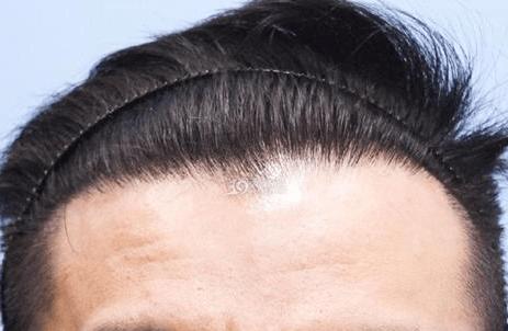 发际线高植发多少钱