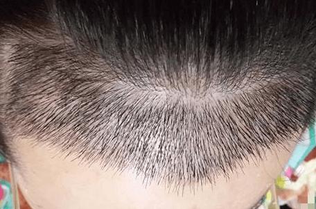 美莱头发种植需要多少钱