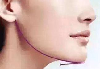 玻尿酸下巴能保持多久