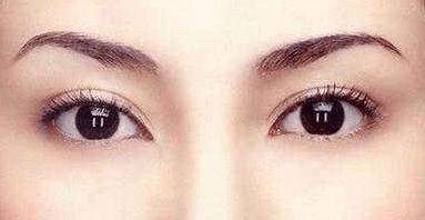 双眼皮埋线有风险吗