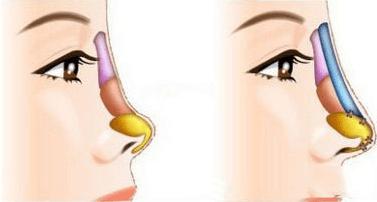 隆鼻假体可以持久的吗