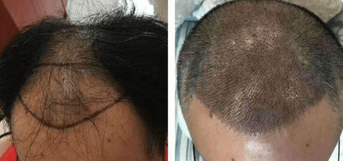 头发稀疏可以植发吗