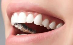 牙齿矫正器多少钱