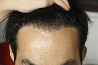种植头发的费用