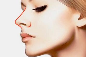 隆鼻手术的方法