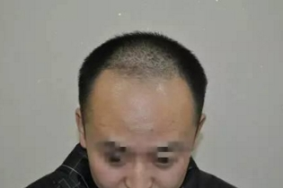 上海植发医院哪家好