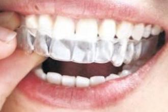 隐形矫正牙齿多少钱