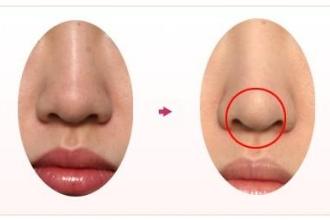 鼻中隔隆鼻多少钱