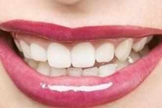 牙齿美容冠怎么做的
