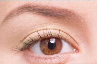 割双眼皮有什么副作用吗