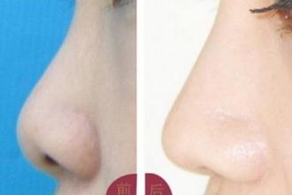 上海隆鼻手术的方法