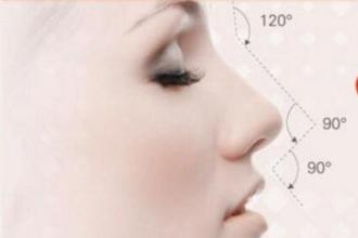 什么是假体隆鼻