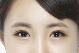 双眼皮疤痕能去掉吗