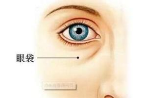 超声法祛眼袋管用吗