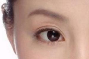 刚做完双眼皮手术需要注意什么