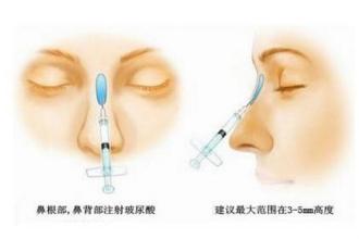 玻尿酸隆鼻多久可以带眼镜