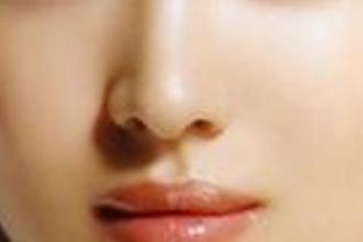 歪鼻矫正术难度大吗