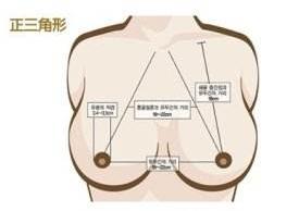 乳房再造需要多少钱