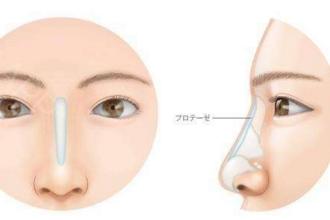 请问鼻假体取出后鼻子会变大吗