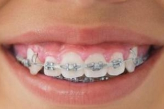 上海牙齿矫正哪里好