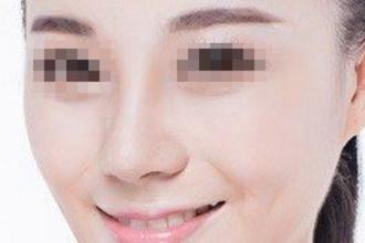 隆鼻的假体有哪些