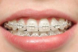 儿童矫正牙齿几岁合适