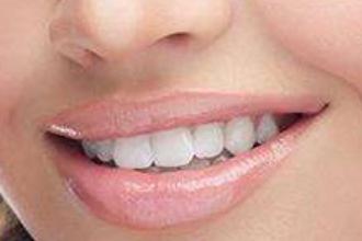 补牙一般要多少钱一颗