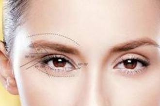 什么是纳米无痕双眼皮