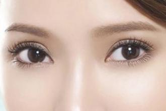 韩式双眼皮适合哪些人