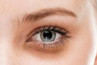 有黑眼圈怎么办