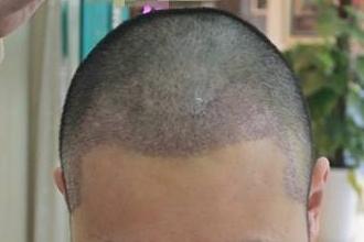 什么是头发种植