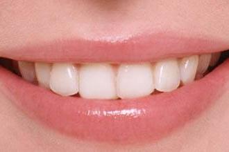 烤瓷牙能用多久