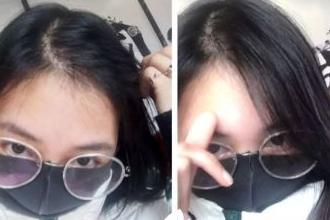 植发有后遗症吗