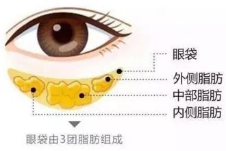 怎么除眼袋