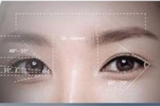 割双眼皮的恢复期多久